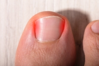 Overcoming an Ingrown Toenail
